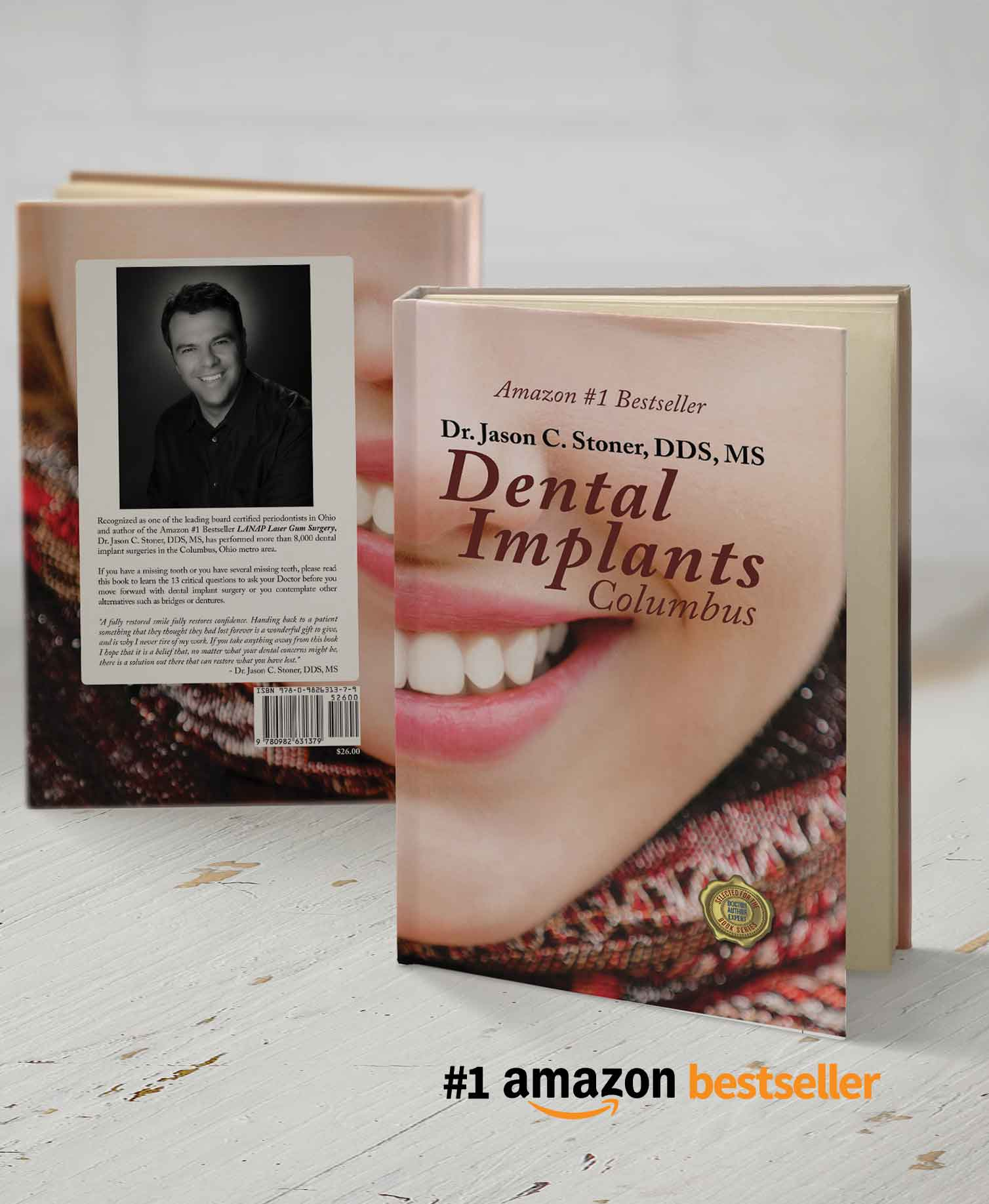 Dental Implants Columbus