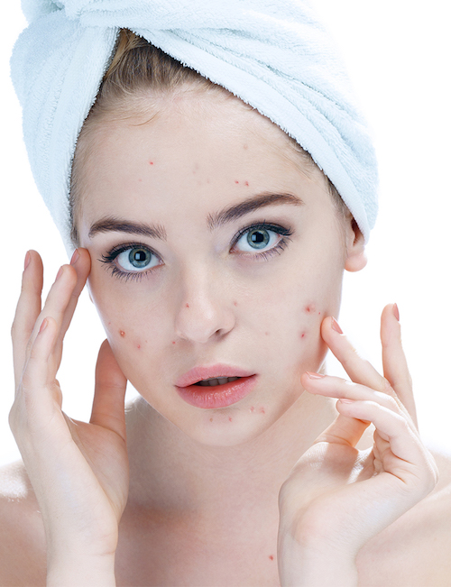 Girl with Pimples